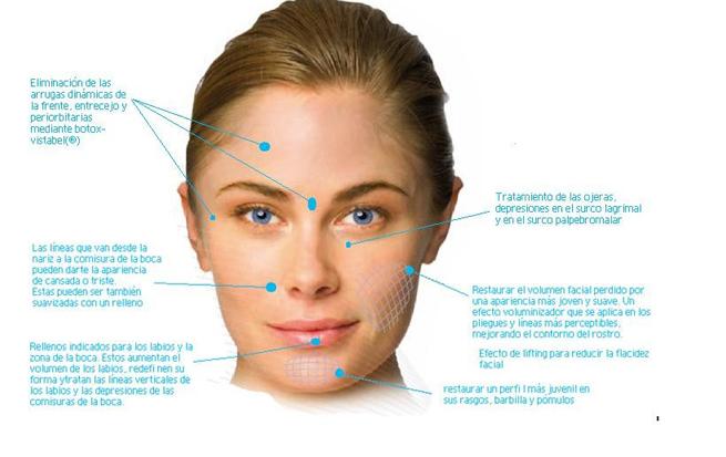 Reestructuración facial: Rellenos - Clínica Dr.Saez - Cirugía ...